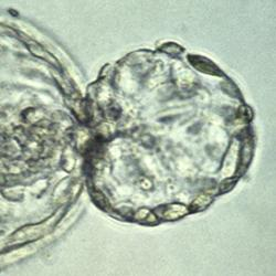 """A human embryo at the blastocyst stage, about six days after fertilization, viewed under a light microscope. The embryo is in the process of """"hatching"""" out of the zona pellucida - the tough outer membrane - just before implanting in the wall of the uterus"""